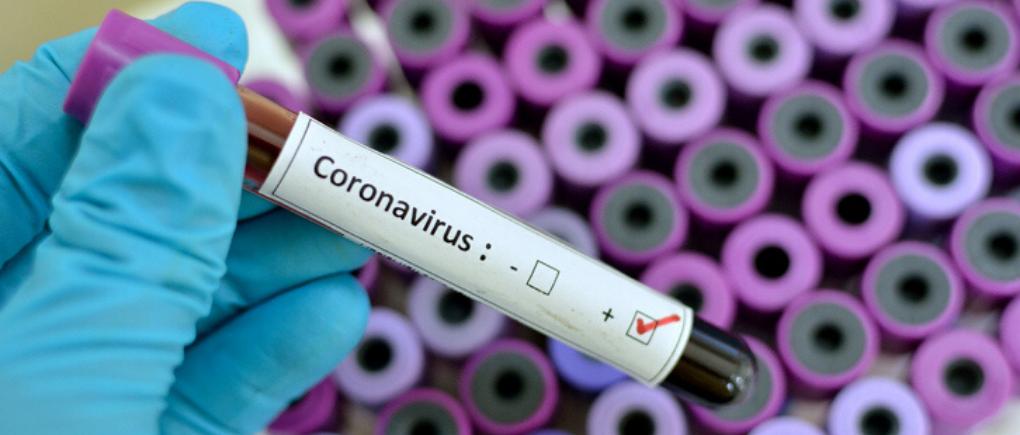 Instrucciones para prevenir el COVID-19